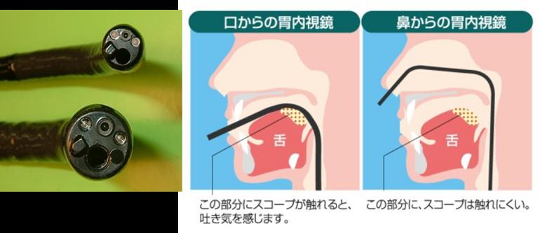 経鼻内視鏡で楽になった胃カメラ検査