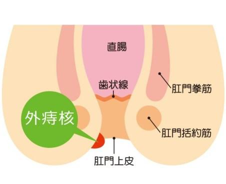 外痔核の症状