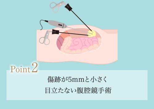 2.傷跡が3~5mmと小さく 目立たない腹腔鏡手術