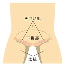 鼠径ヘルニアは、主に3つの種類があります